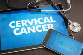 IPVS webinar in French: Dépistage du VPH: implications pour la cible d'élimination du cancer du col